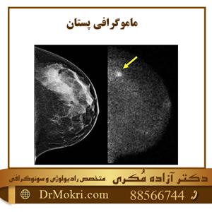 ماموگرافی-پستان